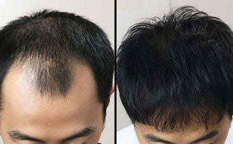 Aveda Hair Oil - के फायदे, रचना, सामग्री