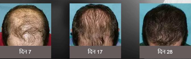 Herbal hair Oil - मतभेद, दुष्प्रभाव