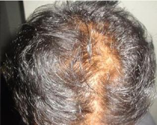 Jatayu Hair Oil - रचना, के फायदे, सामग्री
